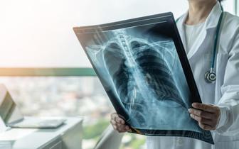 Operacyjny rak płuca - zdaniem ekspertów w jego leczeniu cofnęliśmy się nawet o 12 lat