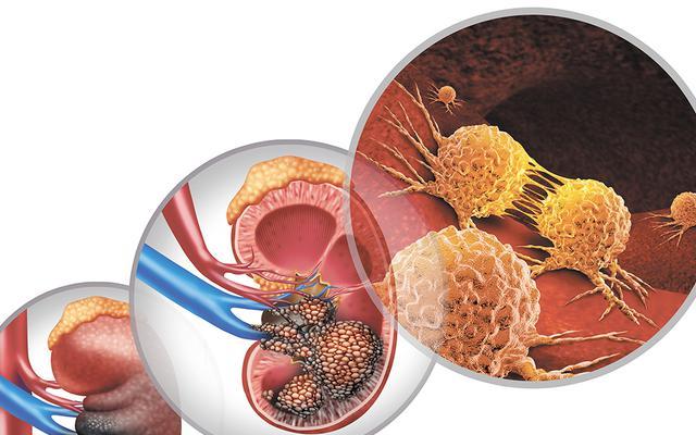 Rak nerki: diagnostyka i leczenie wczoraj, dziś, jutro