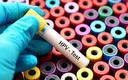 Centrum Onkologii sprawdza skuteczność molekularnych testów na HPV