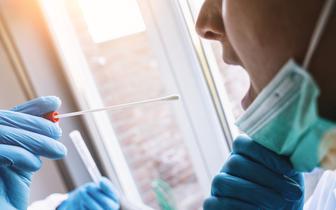 Diagności krytycznie o pulowaniu materiału do badań w kierunku koronawirusa