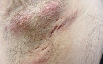 Trądzik odwrócony - lekarze nadal mało wiedzą o tej dokuczliwej chorobie skóry
