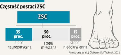 Infografika: Częstość postaci zespołu stopy cukrzycowej
