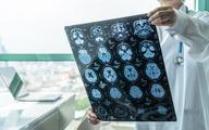 Naukowcy z Uniwersytetu Gdańskiego zidentyfikowali związek, który może pomóc w leczeniu choroby Alzheimera