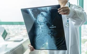 W szpitalu uniwersyteckim we Wrocławiu zastosowano nową metodę leczenia skrzywienia kręgosłupa