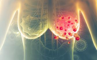 Rybocyklib z niemal pięcioletnią medianą całkowitego przeżycia w zaawansowanym raku piersi