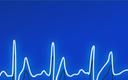 Wielki chaos w sercu z wszczepionym ICD