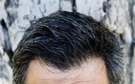 Czy wąsaci mężczyźni są zdrowsi?