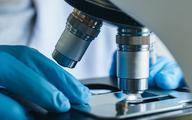 MZ: W tym roku powstaną standardy badań patomorfologicznych