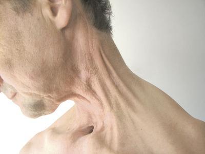 U pacjentów onkologicznych techniki rozluźniania mięśniowo-powięziowego należy stosować w miejscach, gdzie obserwuje się ograniczenia ruchomości tkanek. Terapia powinna rozpocząć się wkrótce po zagojeniu się rany.