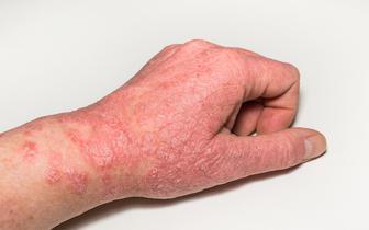 Atopowe zapalenie skóry: jak można je nowocześnie leczyć?