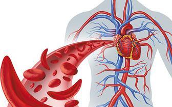 Jak zapobiec krwawieniom u pacjentów oddziałów kardiologii i OITK