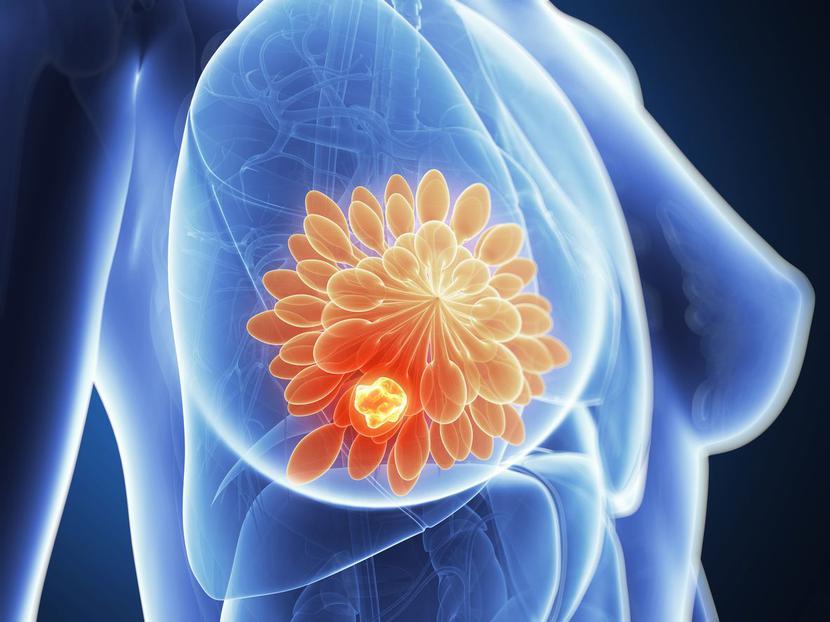 Nowotwór piersi – wizualizacja