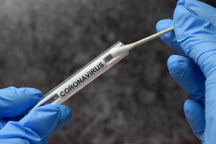 Kto poza lekarzami podstawowej opieki zdrowotnej będzie mógł zlecić test w kierunku SARS-CoV-2?
