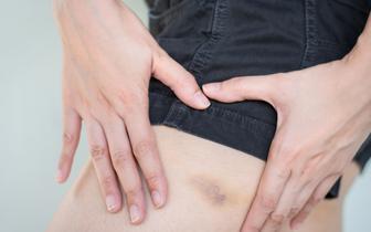 Siniak siniakowi nierówny, czyli przyczyny krwawych wylewów