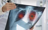Niektóre terapie czynią z raka płuca chorobę przewlekłą