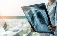 Ekspert: Zator płucny po COVID-19 na ogół powoduje materiał zakrzepowy powstający miejscowo