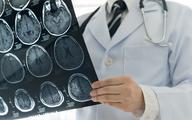 COVID-19 powoduje uszkodzenie mózgu, które można podzielić na 3 stadia [BADANIA]