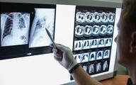 WHO: Gruźlica zabija codziennie 4,5 tysiąca osób