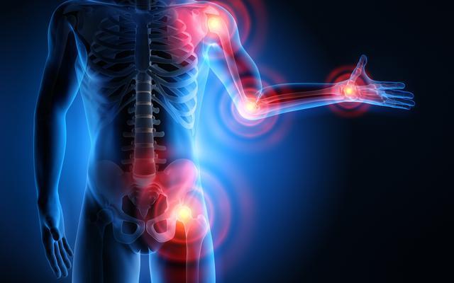 MZ zapowiada pilotaż szybkiej ścieżki dla pacjentów z zapaleniem stawów