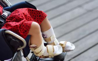 Ponad 13 mln na produkcję ortez ortopedycznych w technologii 3D