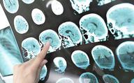 COVID-19 może powodować demencję podobną do alzheimera. Naukowcy wiedzą dlaczego