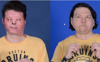 Pierwszy na świecie udany jednoczesny przeszczep twarzy i rąk