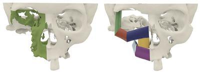 Zakres resekcji nowotworu i planowana rekonstrukcja z użyciem wolnego płata strzałkowego prawego.