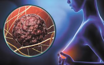 Niebezpieczne związki cukrzycy i chorób nowotworowych