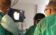Nowatorski zabieg endoskopowy w Klinice Chirurgii Ogólnej, Transplantacyjnej i Wątroby WUM