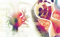 Leczenie hipercholesterolemii: ambitne cele, potrzebne narzędzia