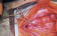Jak poprawić wczesne i odległe wyniki transplantacji nerek