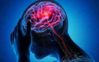 Osoby z COVID-19 przechodzą udary mózgu ciężej niż osoby z ogólnej populacji [BADANIE]