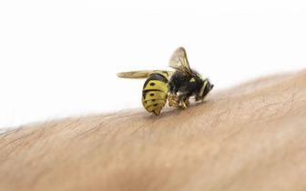 """""""Oblicza Medycyny"""": Uczulenie na jad owadów błonkoskrzydłych może mieć gwałtowny, zagrażający życiu przebieg [WIDEO]"""